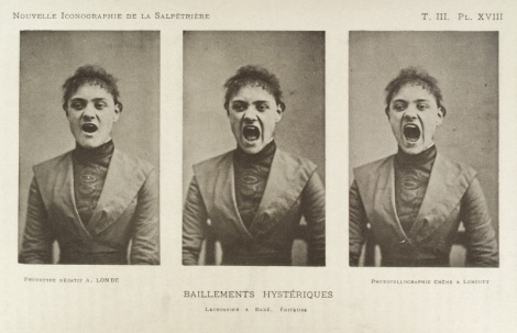 L0034940 Series of three photos showing a hysterical screaming woman