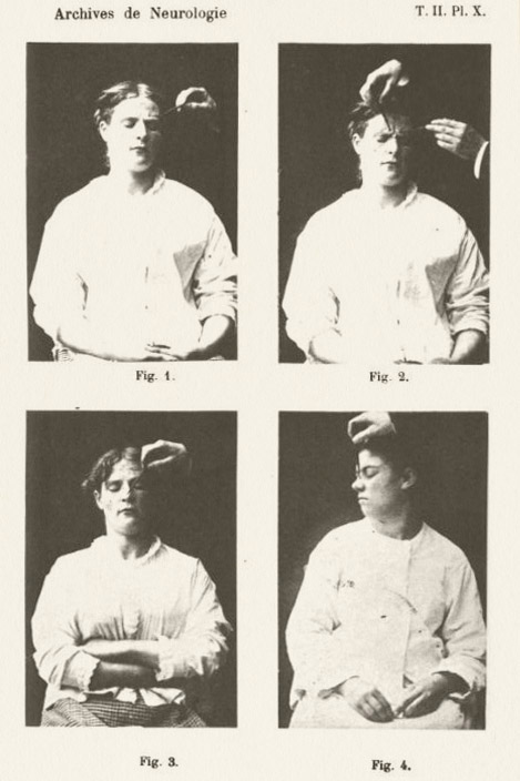 Charcot - The Ladies - Magic Medical Mystery (x4)